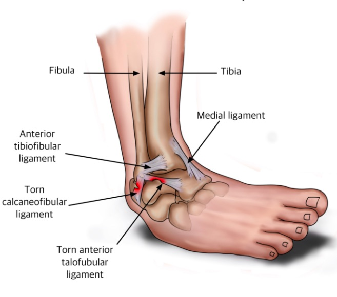 ankle sprains physio